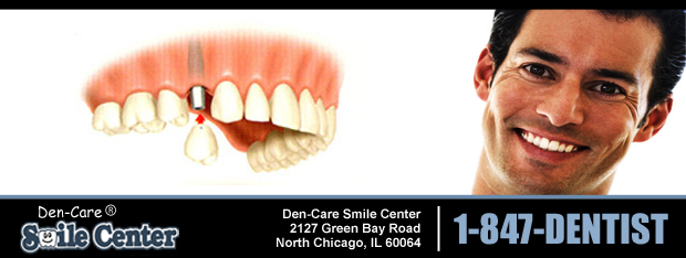 Dental Implants Lake County IL
