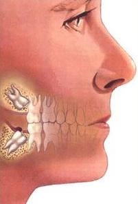 Wisdom Teeth 2