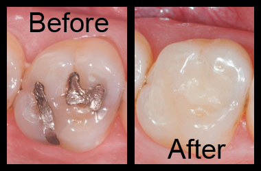 Tooth Colored Composite Filling Before and After