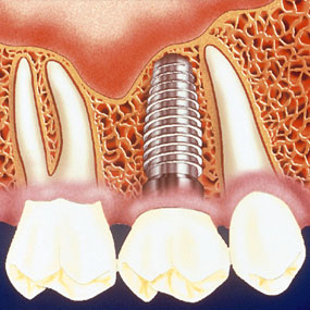 Low Cost Dental Implant Lake County IL