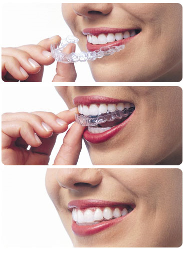 Invisalign Braces Lake County IL