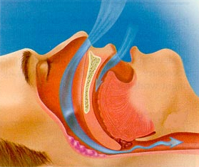 Sleep Apnea Treatment Lake County IL