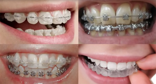 Affordable braces for adults