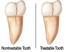 Endodontic Treatment Options for Cracked Teeth Lake County IL