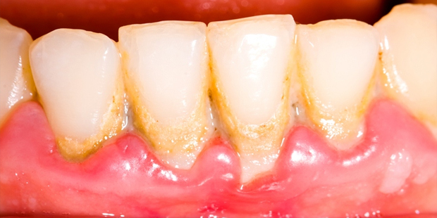 Periodontics Lake County IL - Gingivitis, Periodontal Disease and Gum Surgery