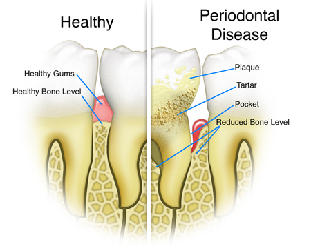Affordable Periodontal Disease Treatment Lake County IL