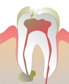 Root Canal Dentist Lake County IL