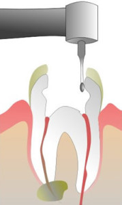 Best Root Canal Dentist in Lake County IL