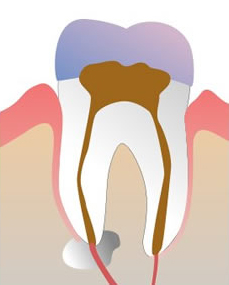 How much does a root canal cost in Lake County IL
