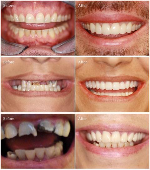oral surgery illinois medicaid oral surgeon