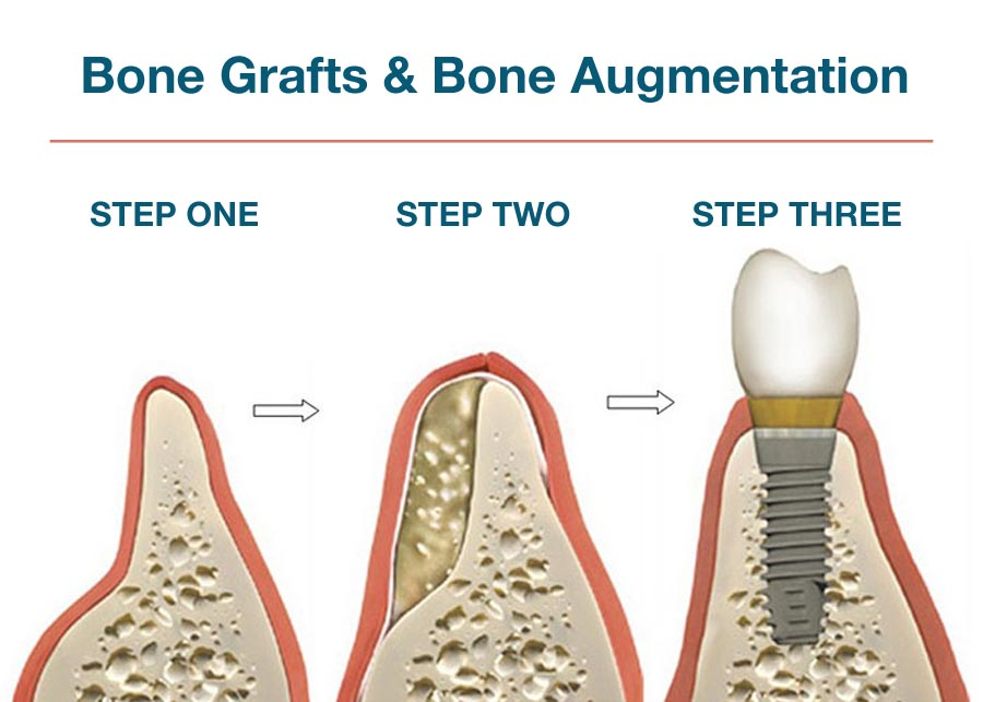 bone graft bone augmentation lake county il oral surgeon