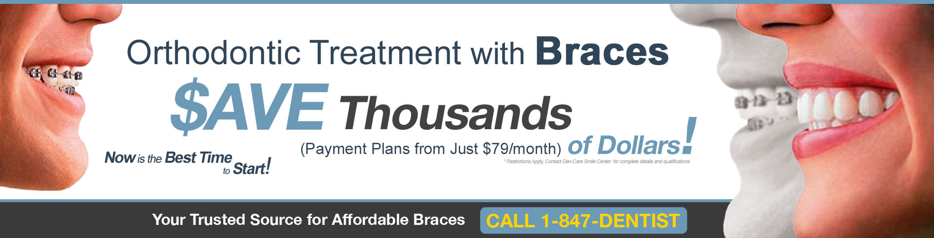 affordable dental braces lake county il