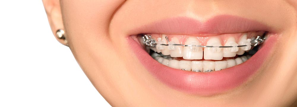 braces for adults lake county il orthodontics