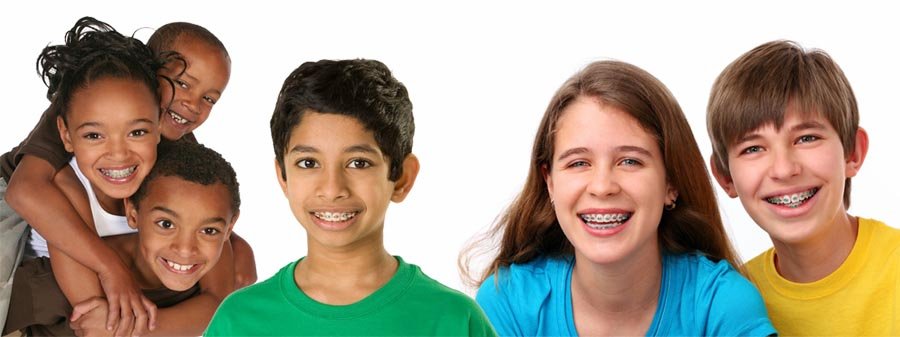 Image result for images of group of kids with braces