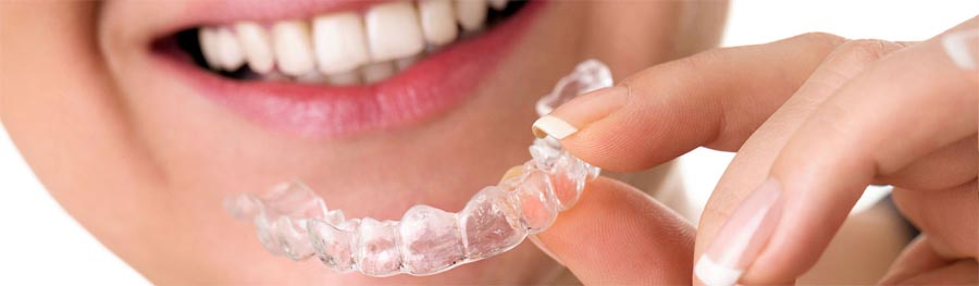 affordable-invisalign-invisible-braces-lake-county-il