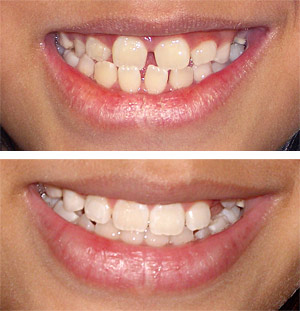 orthodontist that accepts the medical card for braces in illinois